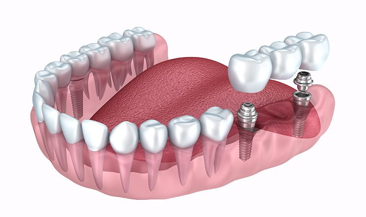 render of how dental implants are placed in