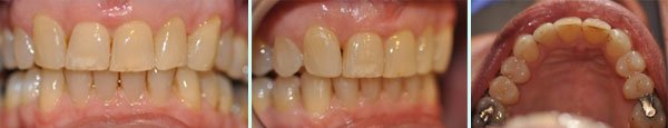 smile after procedure