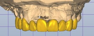 3d render of teeth after smile makeover