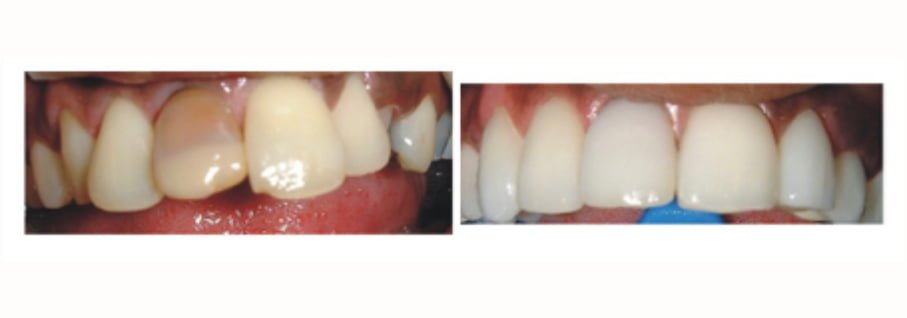 smile transition through the procedure