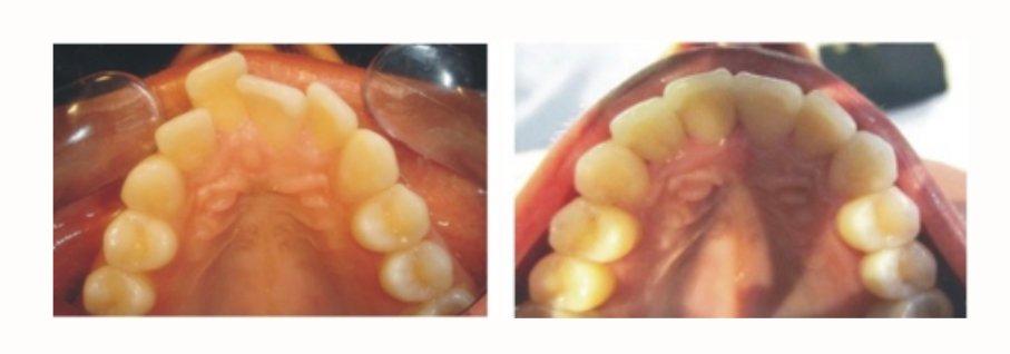 smile transition through the procedure