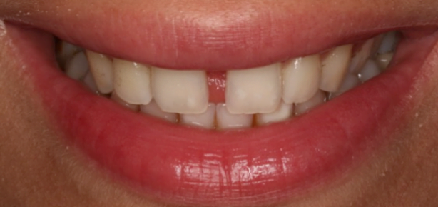 How long to close my gap?